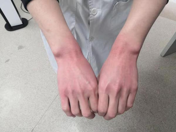 """济医附院兖州院区:不美丽的""""手""""护"""